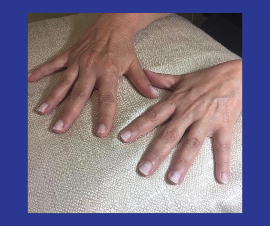 How To Restore Damaged Nails After Gel, Acrylic or Powder Manicures | Picture of two hands on white pillow after powder manicure removed