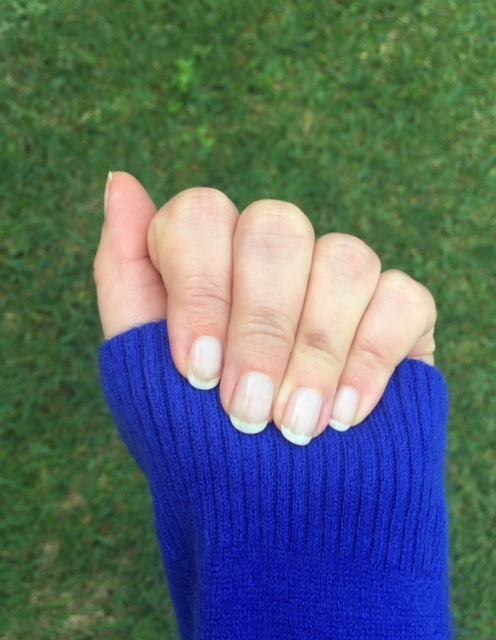 How To Restore Damaged Nails After Gel, Acrylic or Powder Manicures | Picture of one hand 8 weeks after gel manicure removed