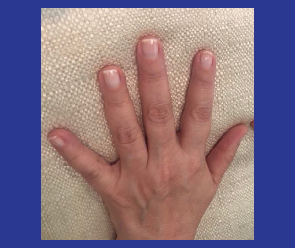How To Restore Damaged Nails After Gel, Acrylic or Powder Manicures | Picture of one hand after first manicure three weeks after gel nails removed